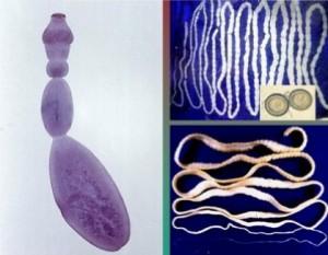 Echinococcus Granulosus. Gusanos planos.
